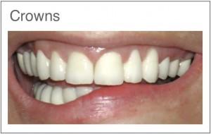 Couronne E-max  facettes Emax Helvetic clinics