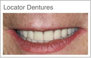 Dentier et prothèses dentaires en Hongrie