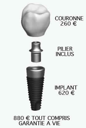 implant dentaires Helvetic clinics