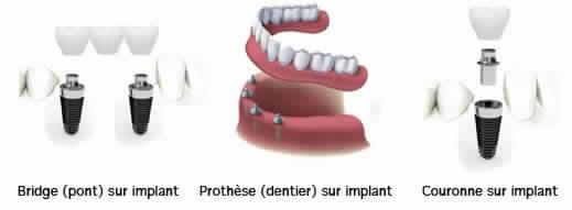 soins dentaires étranger implants dentaires