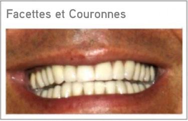soins dentaires etranger bridge